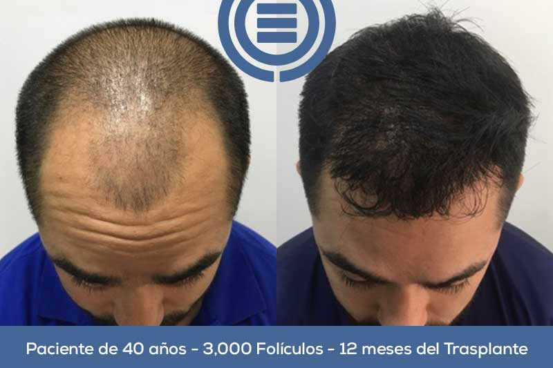 Hair Graft Testimonial - DrEO Clinic