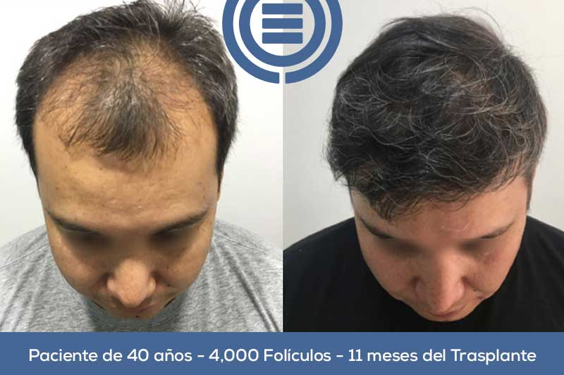 Hair Implant Result
